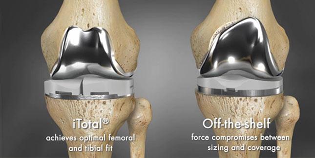 Kniegelenk-3D-Druck_Abbildung